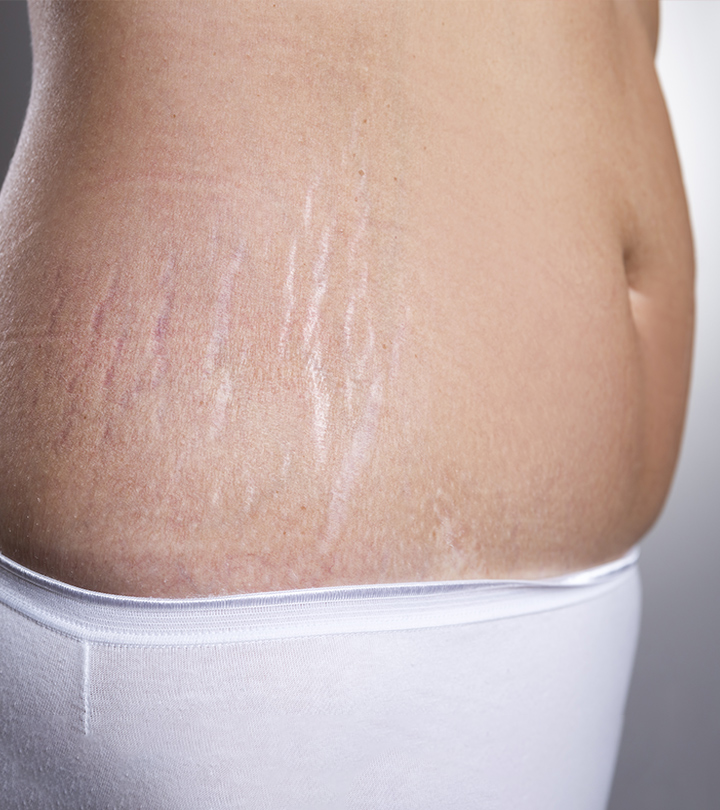 6 Kitchen Ingredients that Get Rid of Stretch Marks
