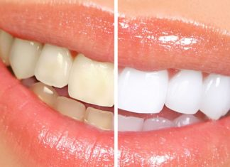 Try These Home Remedies for Teeth Whitening and Fresh Breath